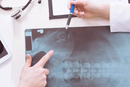 Whiplash Accident Claims and Compensation _ Personal Injury Solicitors